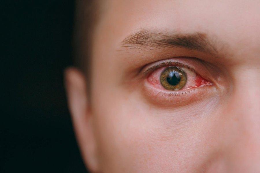 Костромичи могут выслушать советы врачей о глазных болезнях